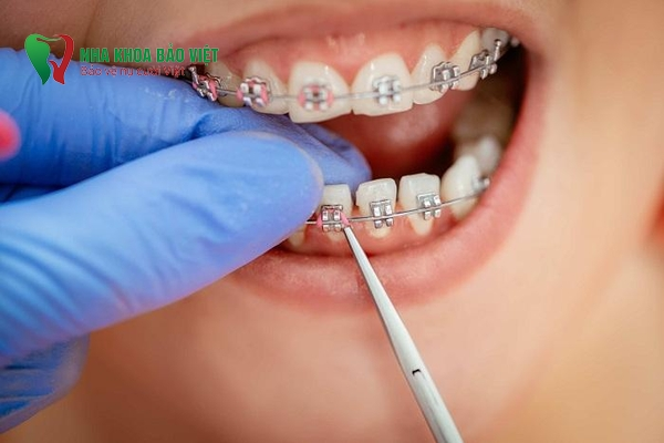 niềng răng đẹp 2