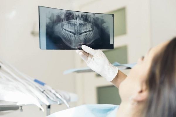 Chụp X quang răng là gì? Những điều cần lưu ý