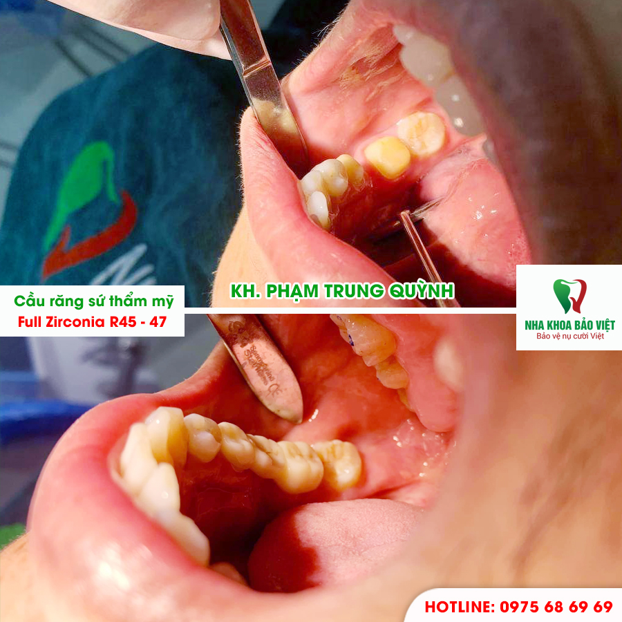 Khách hàng sau khi bọc răng sứ