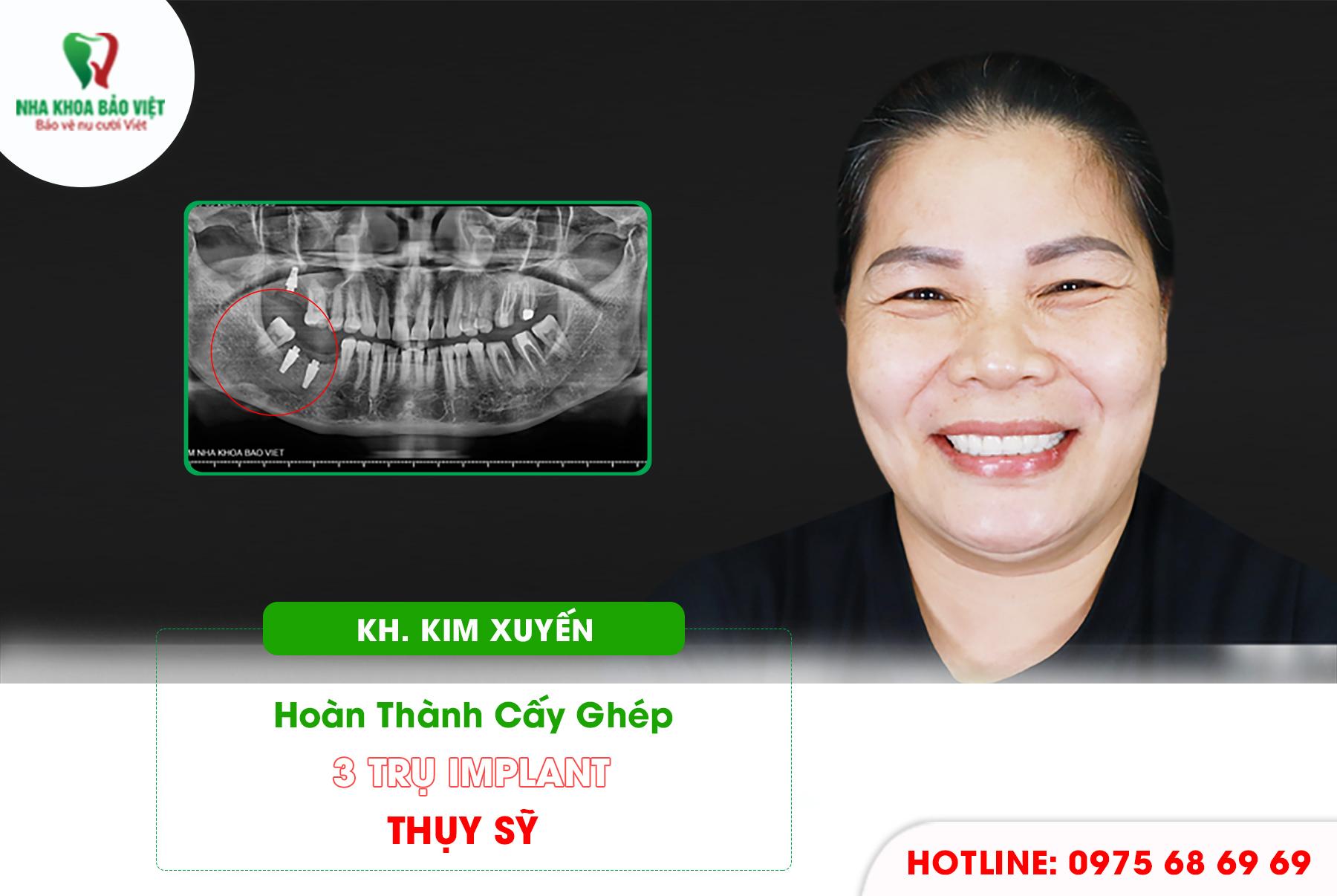 Khách hàng sau khi trồng răng implant